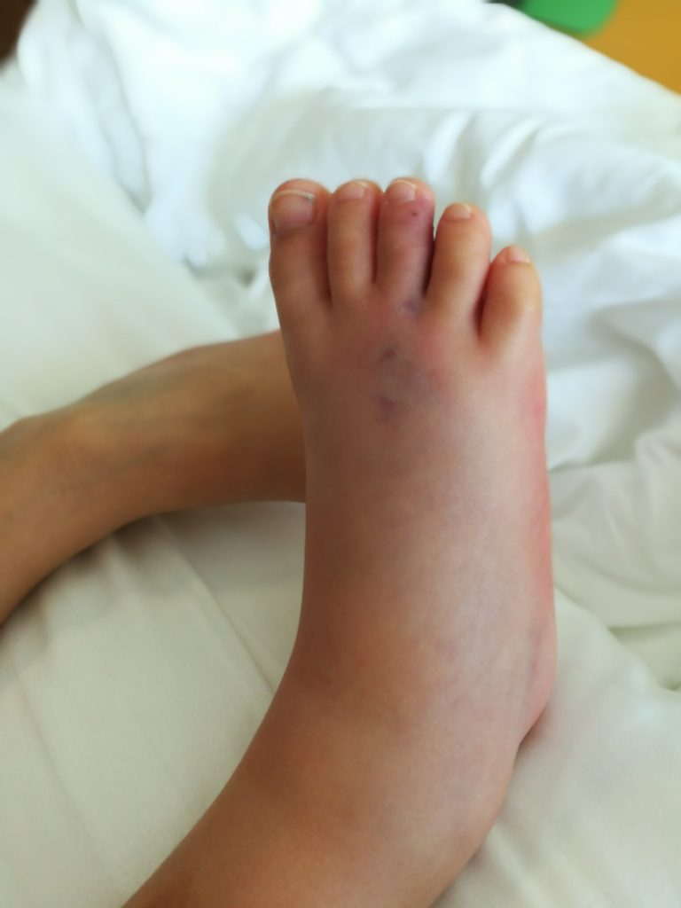 Child's swollen foot with a snake bite
