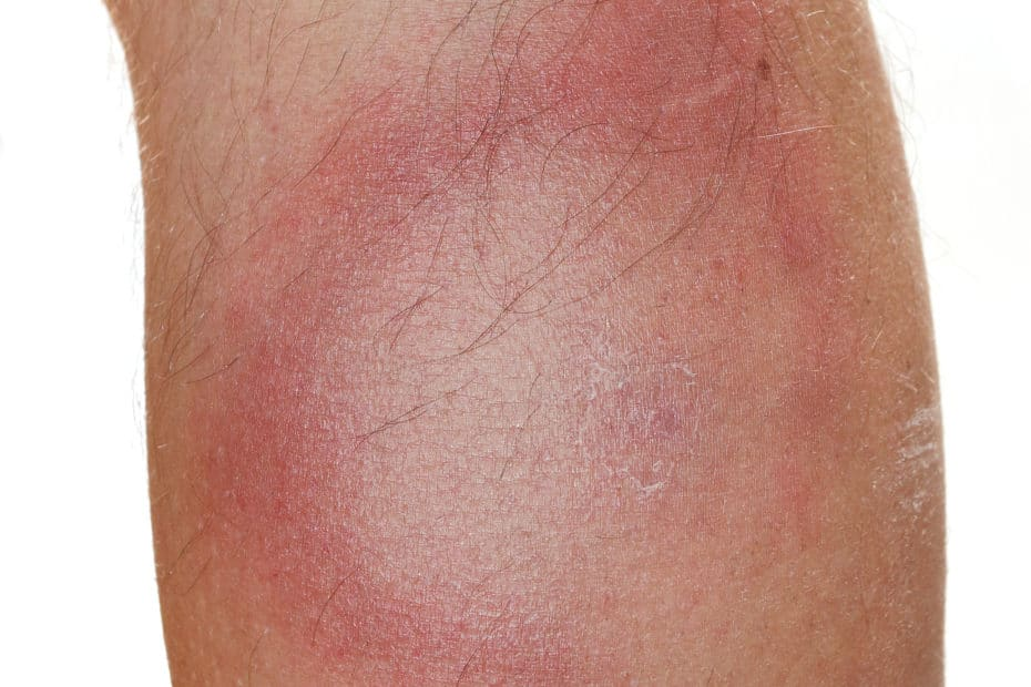 Picture of a ring-shaped rash caused by Lyme disease