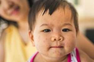 Halsfluss, körtelfeber och svullna lymfkörtlar på halsen hos barn