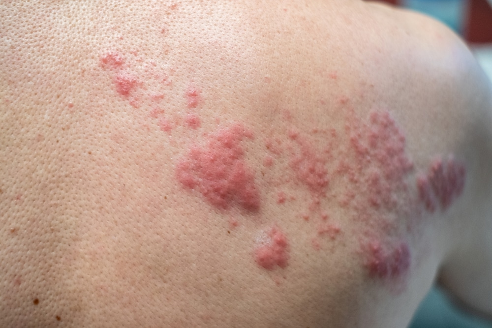 Picture of shingles with red blisters in a band along the shoulder