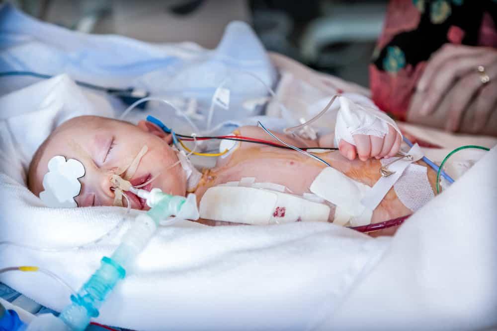 Bebis i respirator efter hjärtoperation, då kan RS vara riktigt farligt.