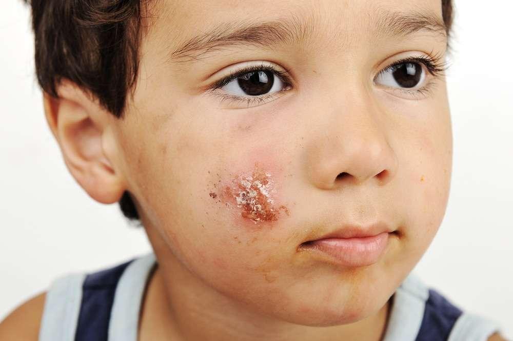 Svinkoppor (impetigo) hos barn – smitta och behandling