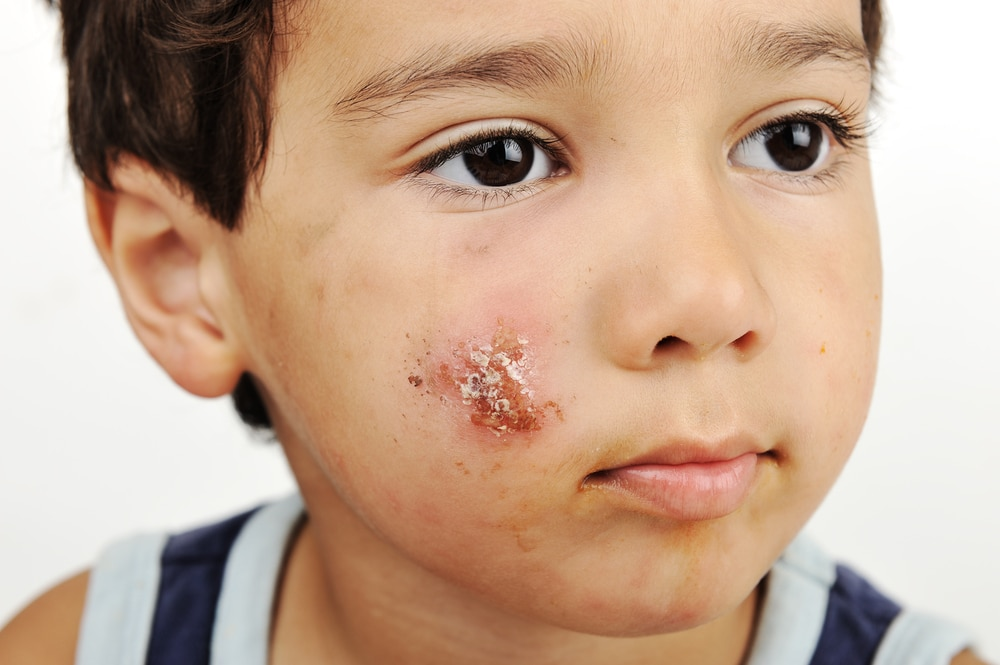 Picture of child with impetigo on their cheek