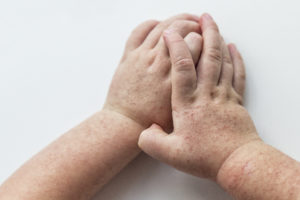 Streptokocker hos barn -stjärtfluss, snippfluss och scharlakansfeber
