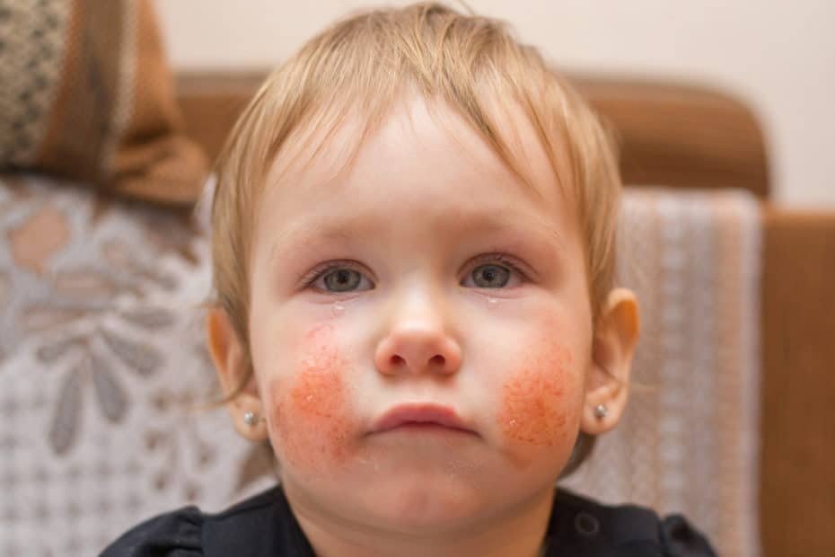 Picture of children with eczema on their cheeks
