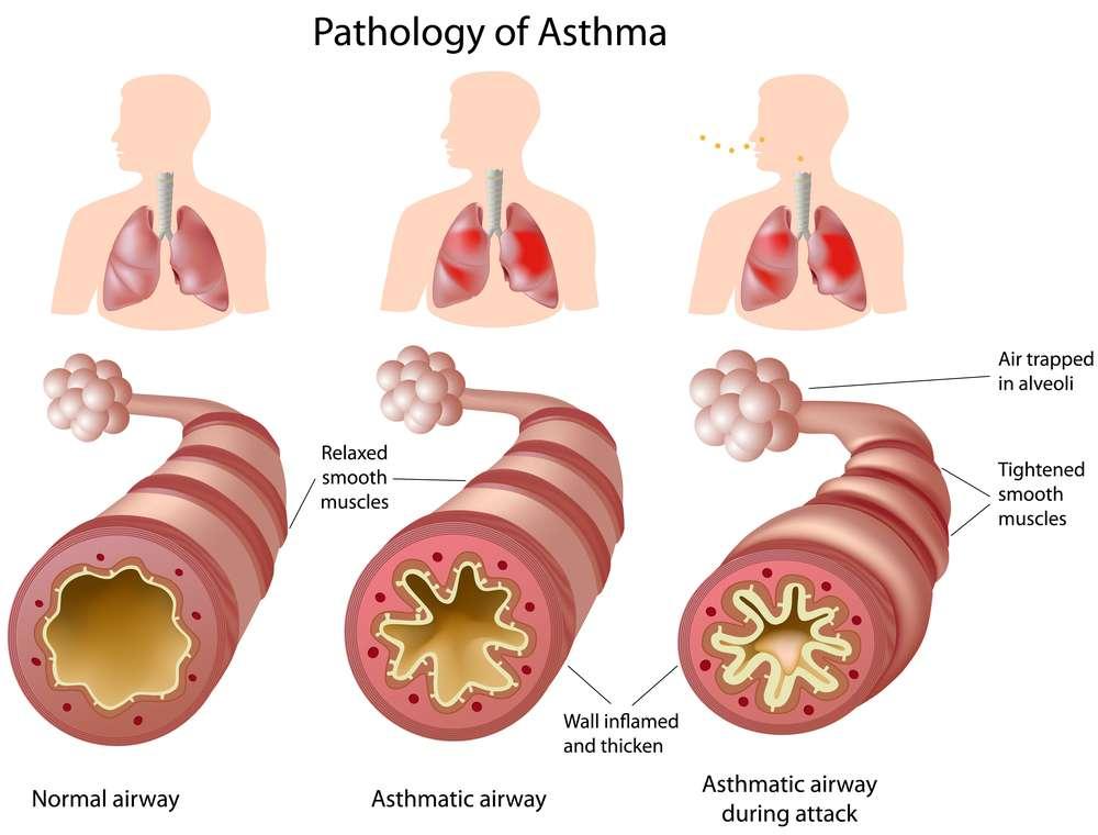 hur astma påverkar kroppen