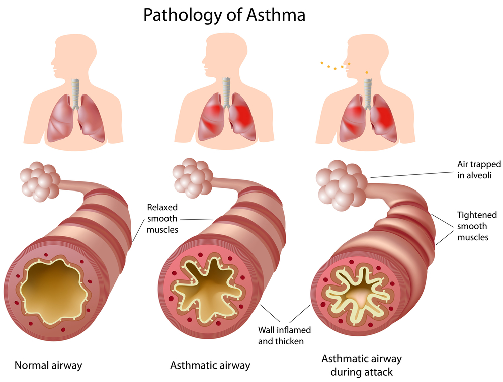 Illustrate the pathology of asthma
